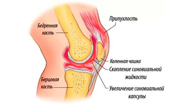 Боль в колене - схема появления боли