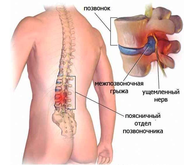 Лечение-грыжи-в-поясничном-отделе-позвоночника---схема
