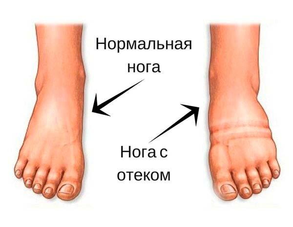 Отеки-ног---фото-сравнение-с-нормальной-ногой