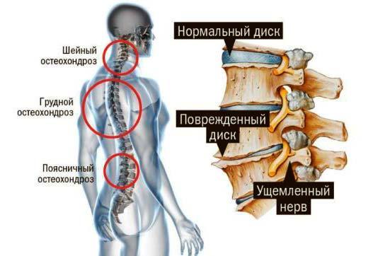 Почему развивается остеохондроз - схематическое изображение