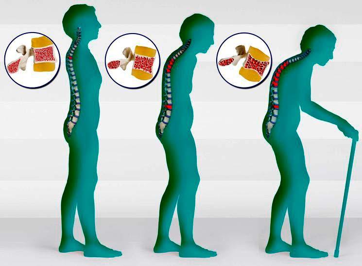 Последствия остеопороза - фото