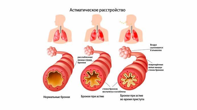 Причины астматического расстройства