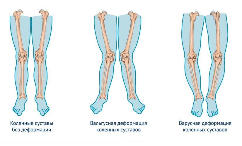 Виды вальгусной деформации стоп и суставов